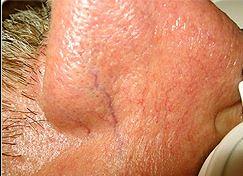 Couperose sur le nez