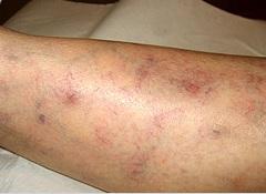 Varicosités et angiomes avant traitement