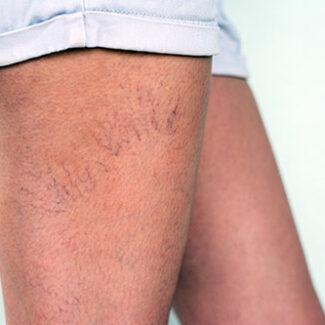 Varicosités et angiomes avant traitement - Dr Denjean - Paris